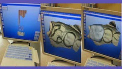 Photo of a CEREC scan