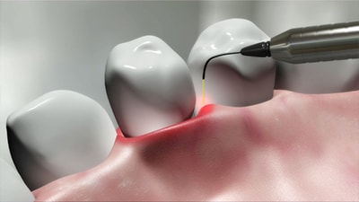 Photo of a laser being used in dentistry